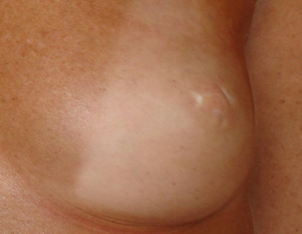Before-chirurgie